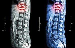 When Medical Malpractice Causes Spinal Cord Injuries